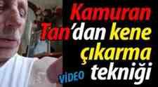 Kamuran Tan'dan Kene Çıkarma Tekniği..(Video)