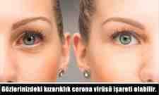 Gözlerinizdeki kızarıklık corona virüsü işareti olabilir.